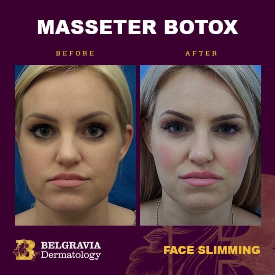 Botox For Masseter Muscles In London For Face Slimming And Teeth